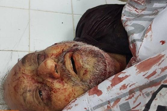 حمله تروریستی به مجلس عزای حسینی در کراچی